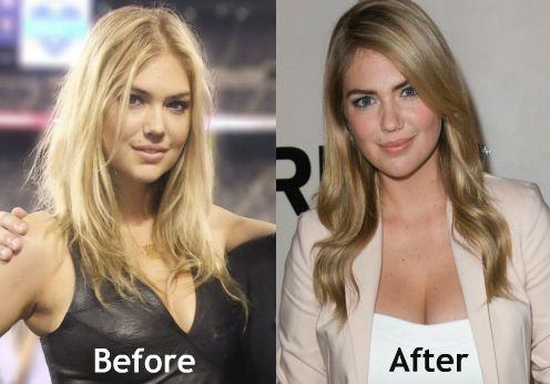 Did kate upton get implants