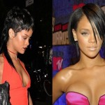 Rihanna before and after plastic surgery 215