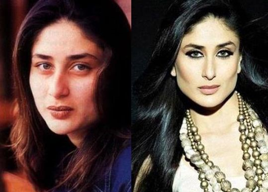 Kareena Kapoor before and after plastic surgery