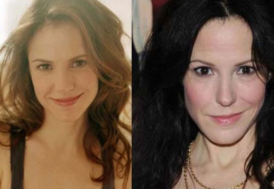Mary Louise Parker before and after plastic surgery