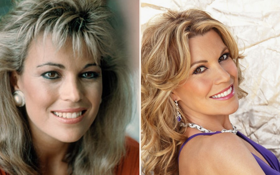 Vanna White before and after plastic surgery