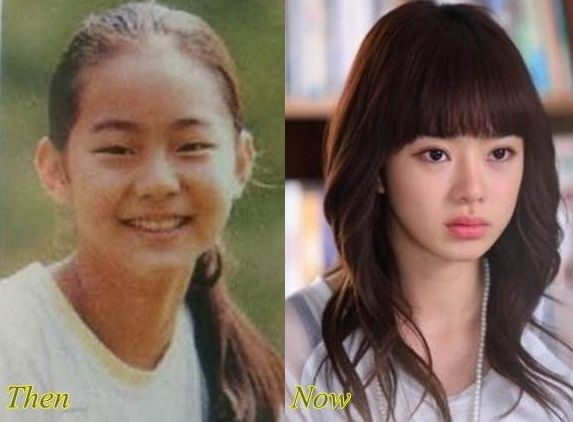 Seo Woo before and after plastic surgery