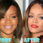 Rihanna before and after plastic surgery 410