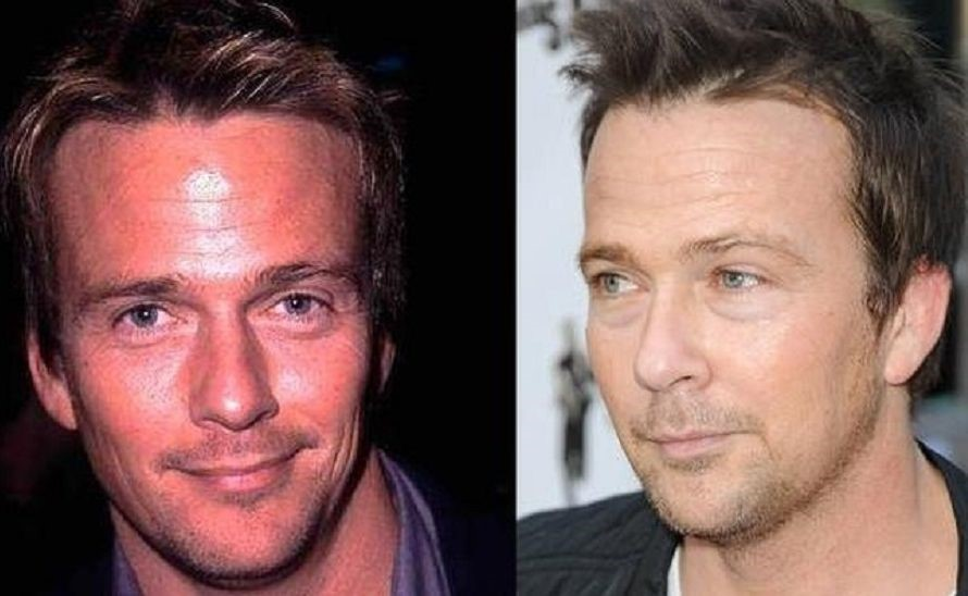 Sean Patrick Flanery before and after plastic surgery