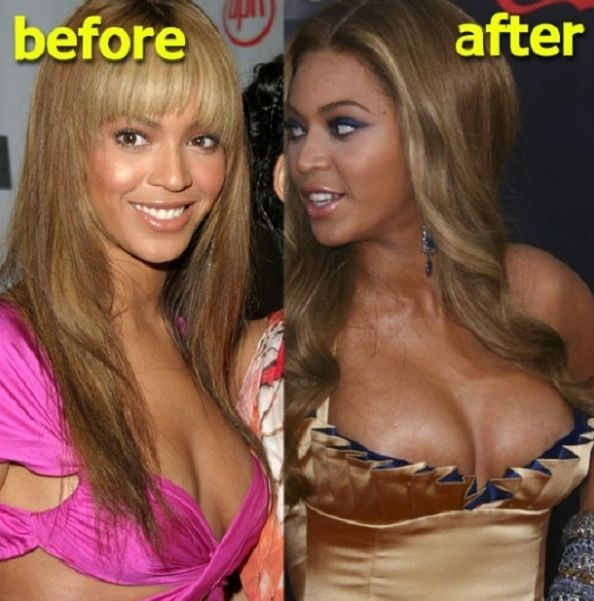 Beyonce before and after plastic surgery