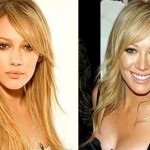 Hilary Duff Before and After Plastic Surgery