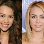 Miley Cyrus before and after plastic surgery