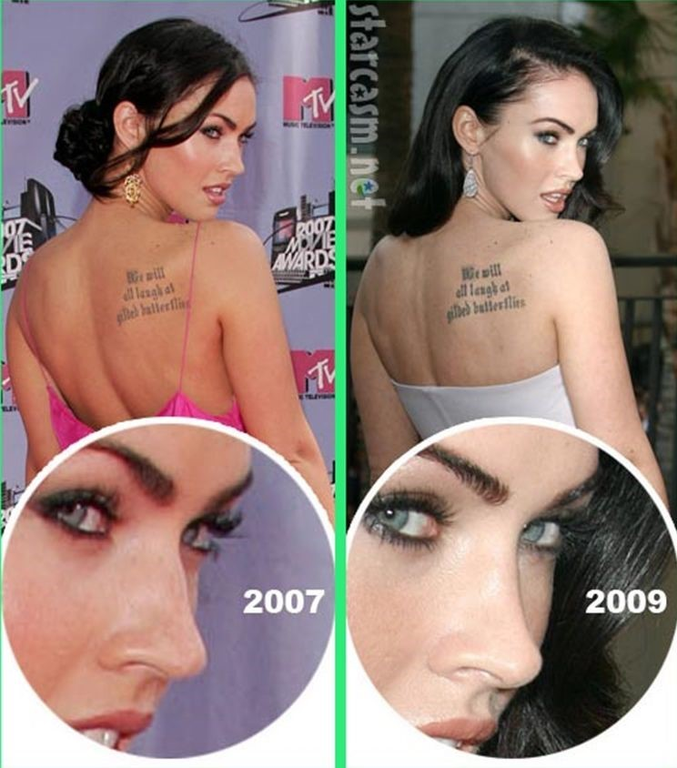 Megan Fox plastic surgery before and after nose job
