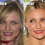 Cameron Diaz before and after plastic surgery 01
