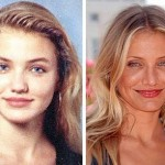 Cameron Diaz before and after plastic surgery 02