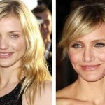 Cameron Diaz before and after plastic surgery 04