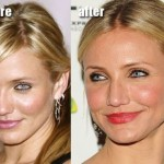 Cameron Diaz before and after plastic surgery 06