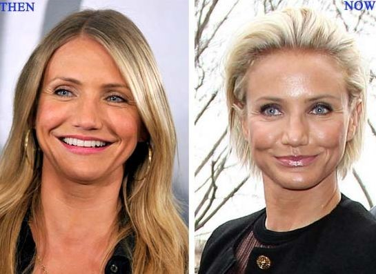 clear plastic bo with Cameron Diaz Plastic Surgery on Tyra Banks No Makeup likewise Bowling Ball together with Colored Plastic Book Baskets as well American Candy Brands likewise Test tube.