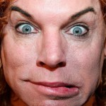 Carrot Top after plastic surgery 01