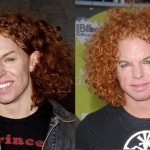 Carrot Top before and after plastic surgery 01