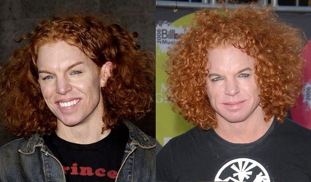 Carrot Top Before And After Plastic Surgery 01 Celebrity