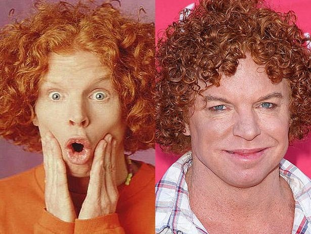 Carrot Top before and after plastic surgery