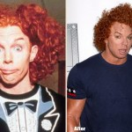 Carrot Top before and after plastic surgery 04