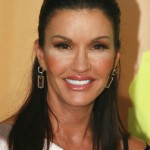 Janice Dickinson after plastic surgery 05