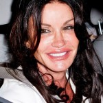Janice Dickinson after plastic surgery 10