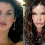 Janice Dickinson before and after plastic surgery 01