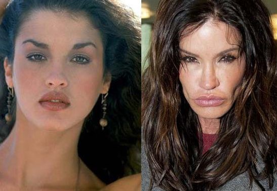 Image result for Janice Dickinson before and after