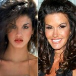 Janice Dickinson before and after plastic surgery 02