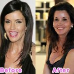 Janice Dickinson before and after plastic surgery 04
