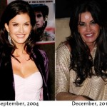 Janice Dickinson before and after plastic surgery 05