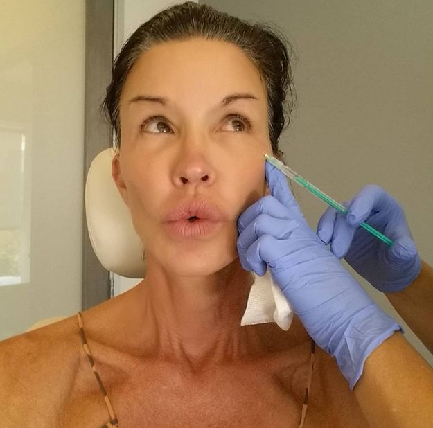 Janice Dickinson plastic surgery botox injections