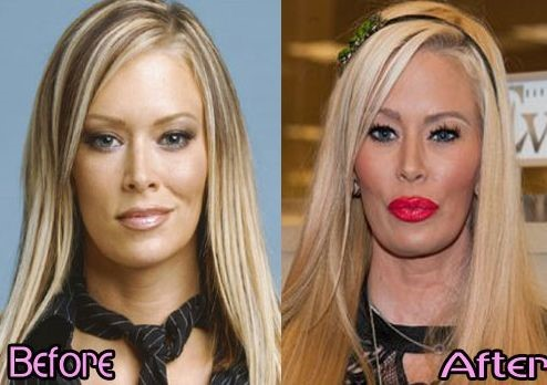 Jenna Jameson before and after plastic surgery