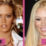 Jenna Jameson before and after plastic surgery 03