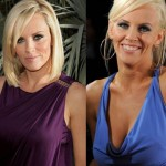 Jenny McCarthy before and after plastic surgery 01