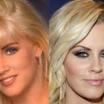 Jenny McCarthy before and after plastic surgery 02