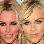 Jenny McCarthy before and after plastic surgery 04