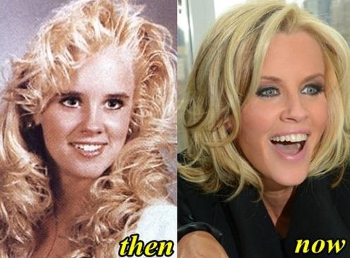 Jenny McCarthy before and after plastic surgery