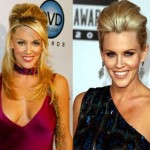 Jenny McCarthy before and after plastic surgery 06