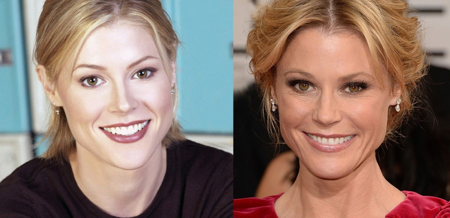 Julie Bowen before and after plastic surgery