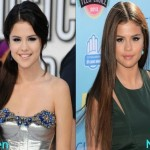 Selena Gomez before and after plastic surgery 01