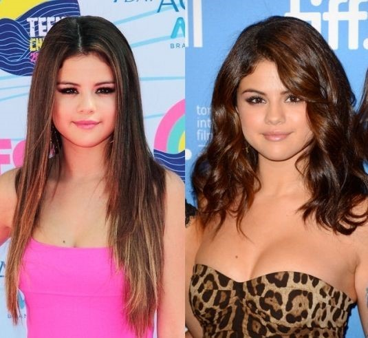 Selena Gomez before and after plastic surgery