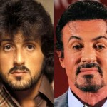 Sylvester Stallone before and after plastic surgery 02