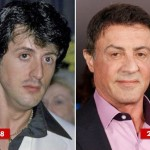Sylvester Stallone before and after plastic surgery 06