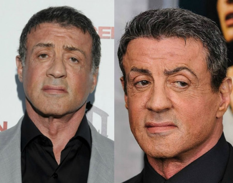 Sylvester Stallone Before And After Plastic Surgery 07
