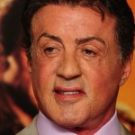 Sylvester Stallone plastic surgery 06