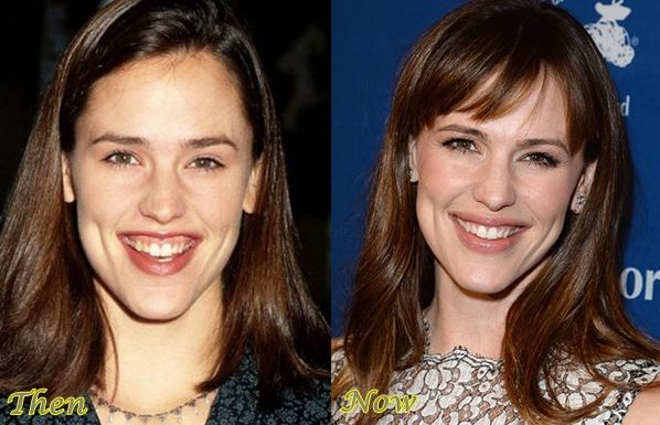 Jennifer Garner before and after plastic surgery