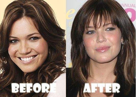 Mandy Moore before and after plastic surgery