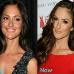 Minka Kelly before and after Plastic surgery