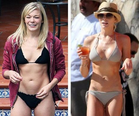 LeAnn Rimes before and after plastic surgery