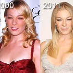 LeAnn Rimes before and after plastic surgery 2