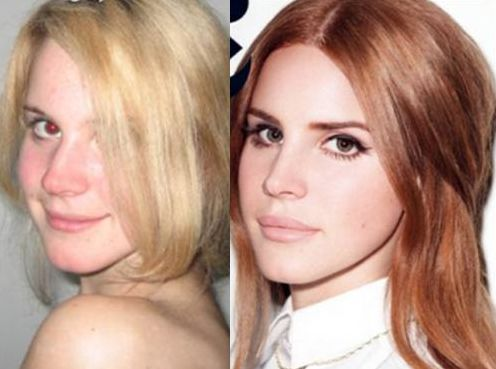 Lana Del Rey before and after nose job